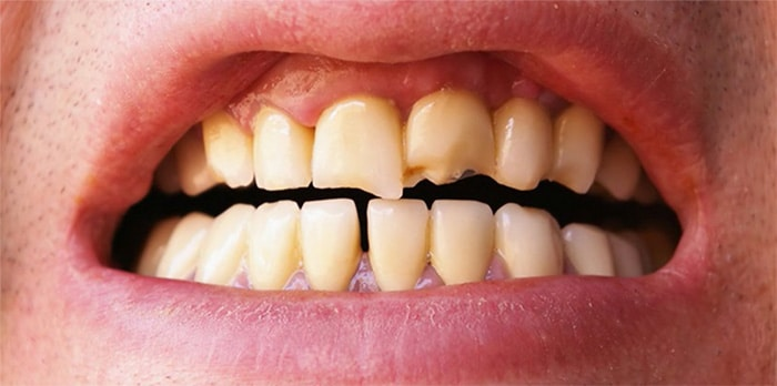 Dentist Near Me | Chipped or Fractured Tooth | Westgage Dental
