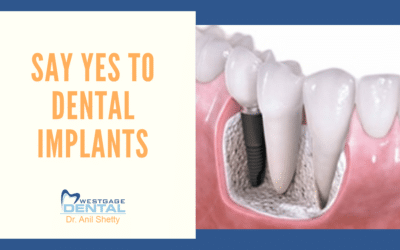 Say YES to dental implants