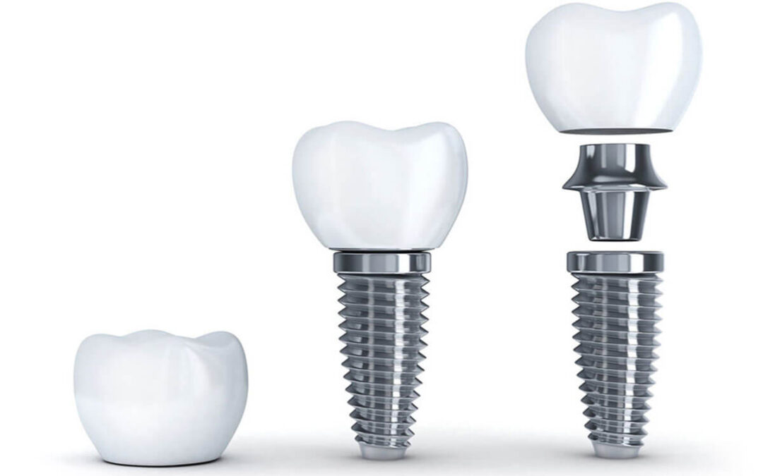 Say Yes! To Dental Implants